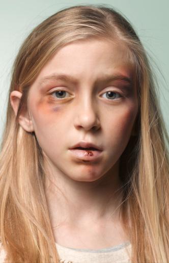 Cześć. Znacie mnie? Jestem Elsa ze Szwecji. Mam 12 lat i zostałam brutalnie zgwałcona przez 3 murzynów i 3 Arabów. Nienawidzę ich i chcę aby umarli ale sąd w Szwecji ich kocha. Trzech z nich dostało 30h pracy społecznej, dwóch wyrok w zawieszeniu a jeden został uniewinniony. Witajcie w Szwecji!