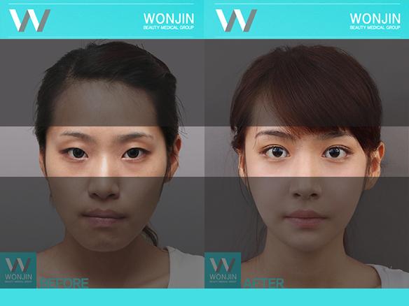Operacje plastyczne w Korei.